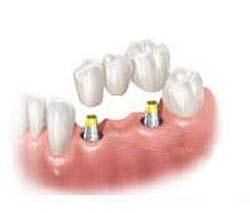 Il ne faut pas remplacer toutes les racines manquantes par des implants dentaires
