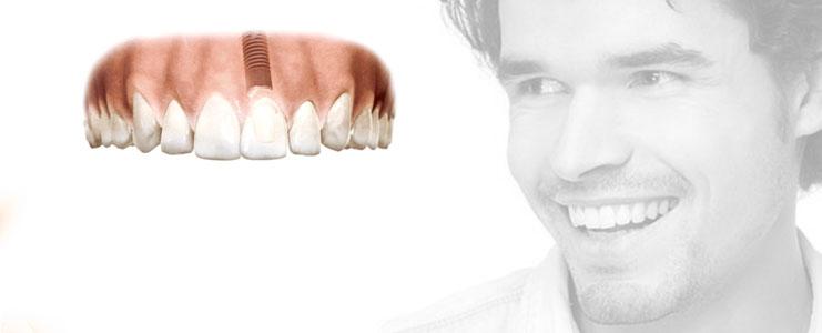 une-seule-implant