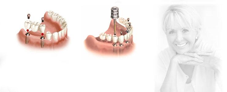bridge-sur-implants-slider6